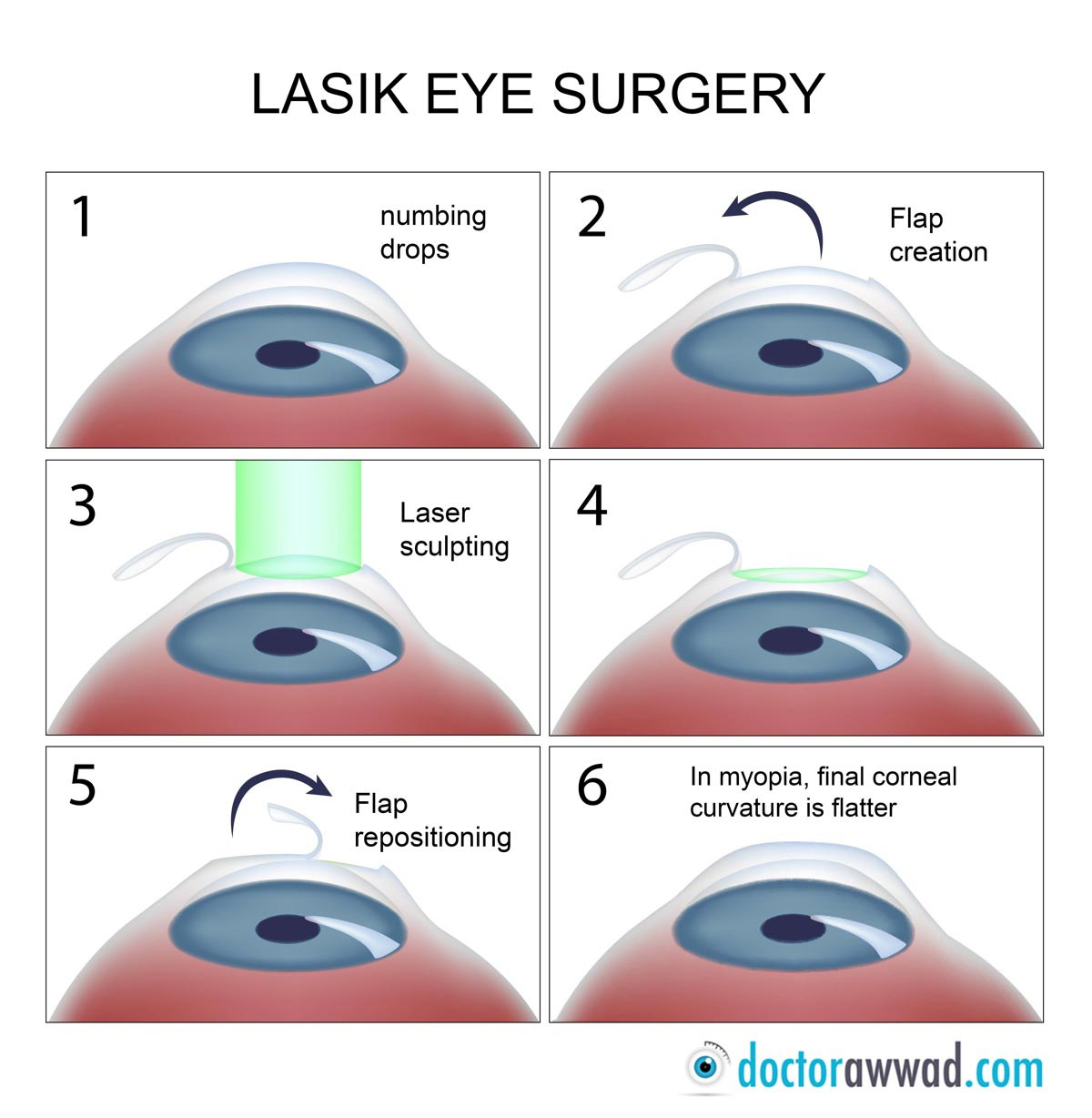 What Is Lasik What S Prk Dr Shady Awwad Eye Surgeon