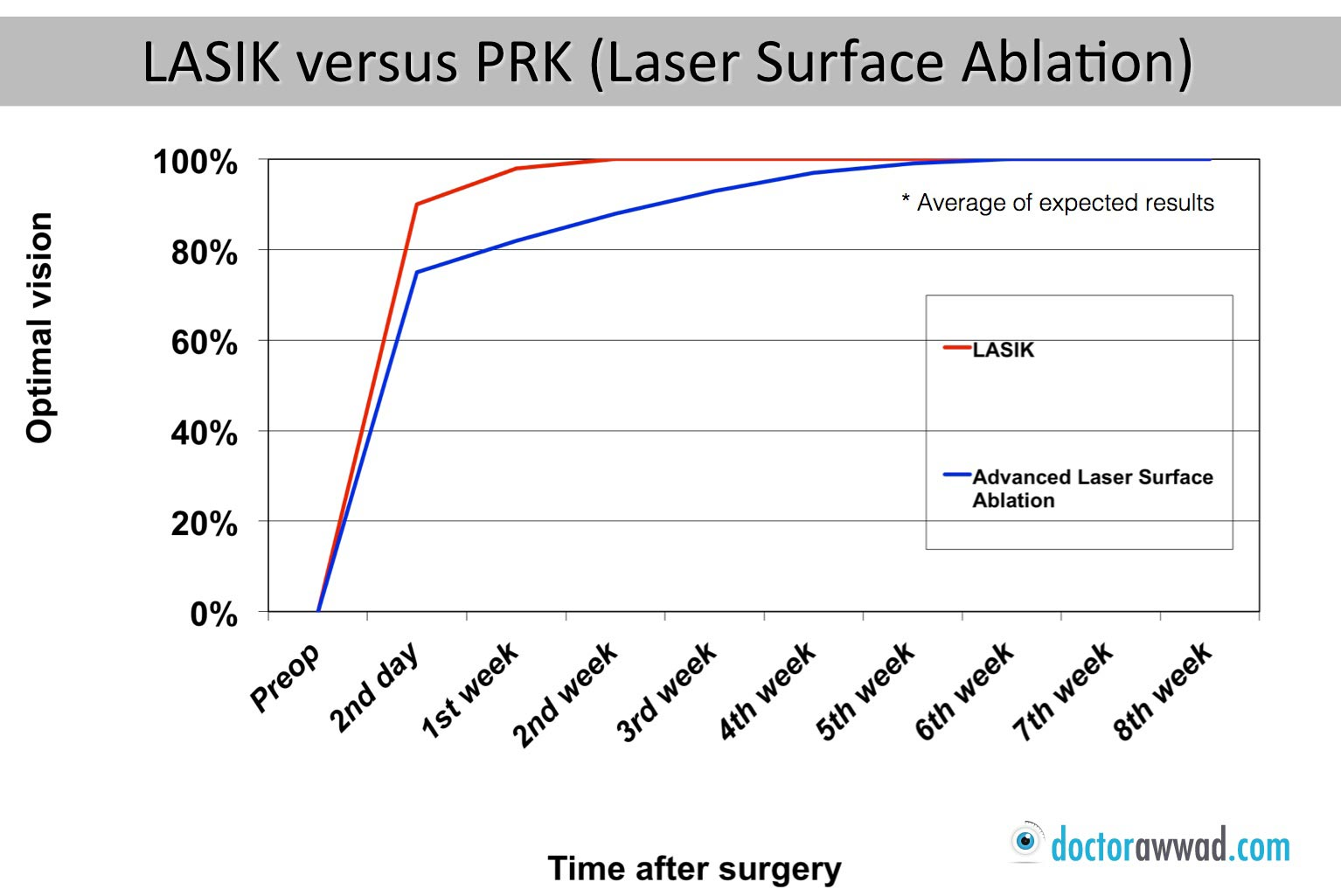 What Is Lasik What S Prk Dr Shady Awwad Eye Surgeon At Aubmc